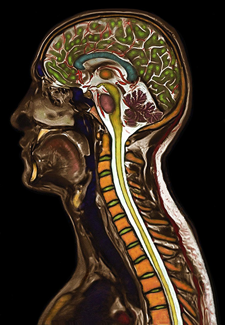 Color Brain and Cervical Spine showing Normal Anatomy