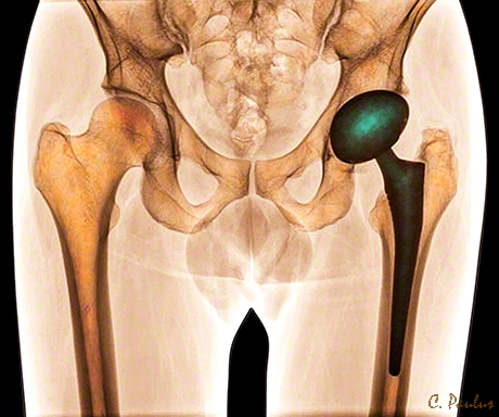 AP Pelvis Color X-Ray showing a Hip Replacement