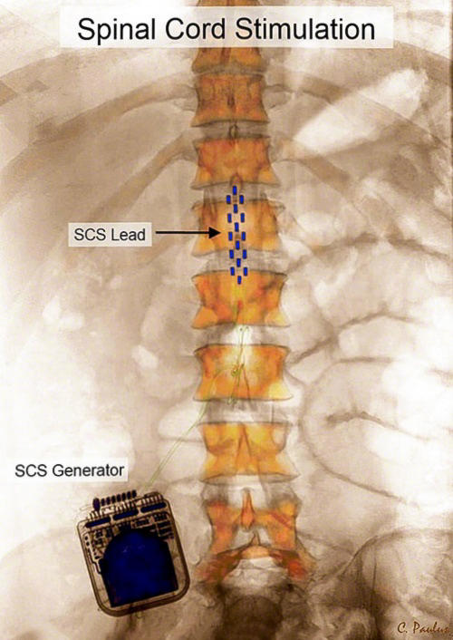 Color X-Ray Lumbar Spinal Cord Stimulation