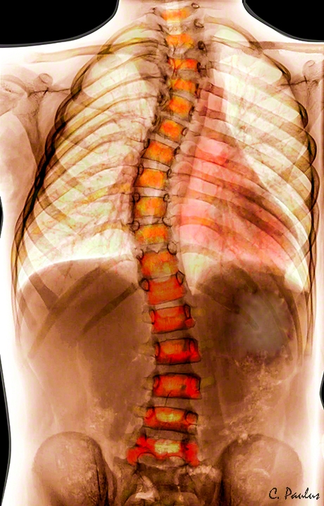Color Scoliosis X-Ray of a Thoraco-Lumbar Scoliosis