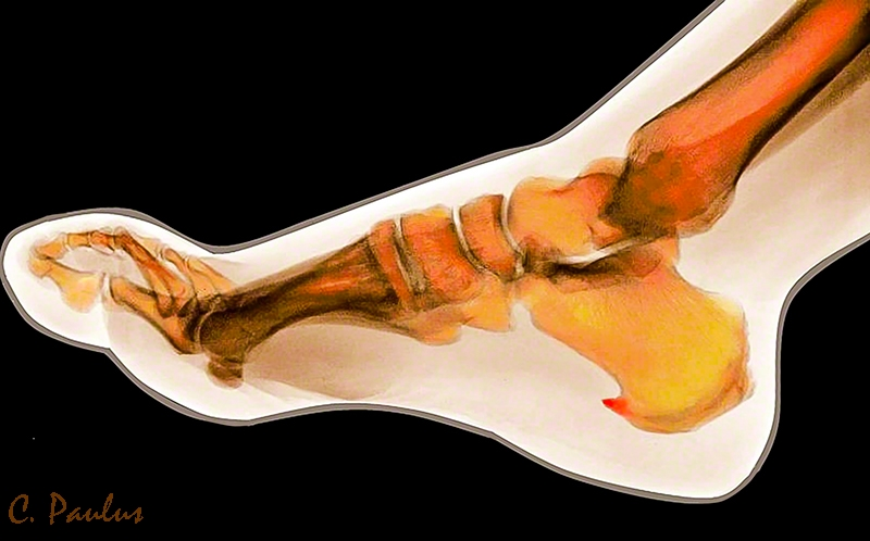 Lateral Color X-Ray of a Heel Spur