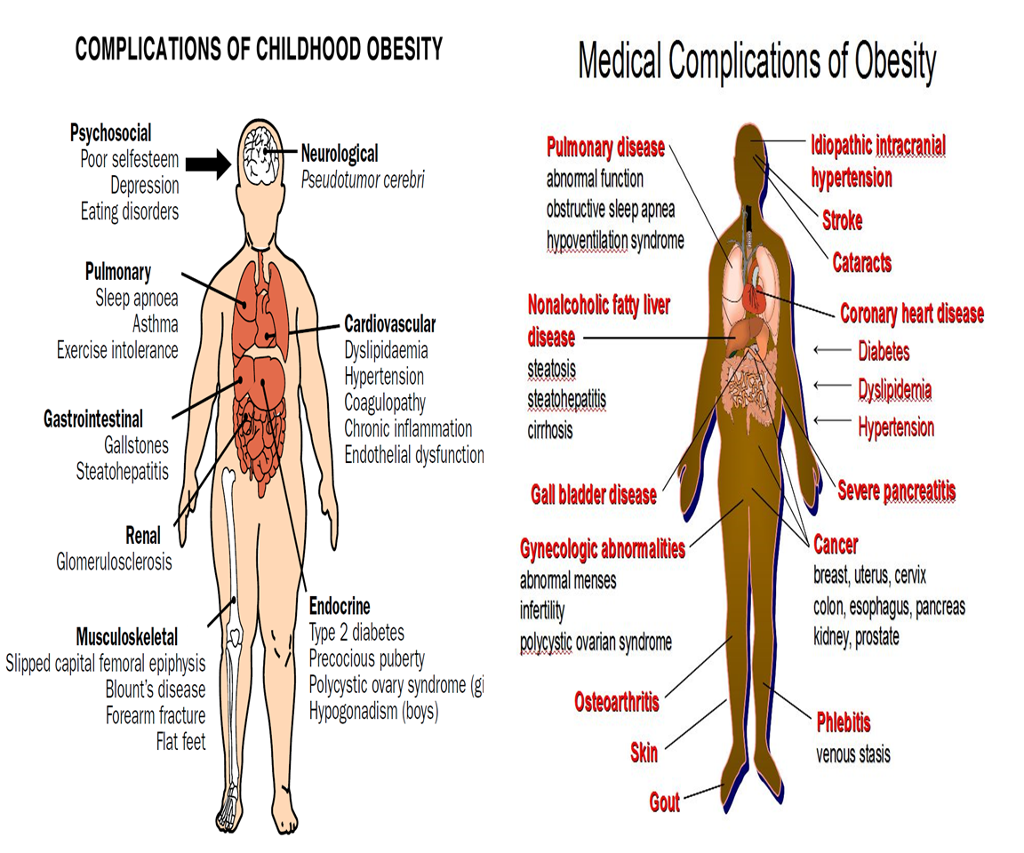 obesity as a disease Obesity is a disease i suffered with for 25 years until i found my solution and reversed it left unresolved, it's a terrible disorder that causes a great deal of damage, physically, emotionally.
