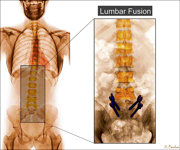 AP Color Lumbar Spine X-Ray Spinal Fusion
