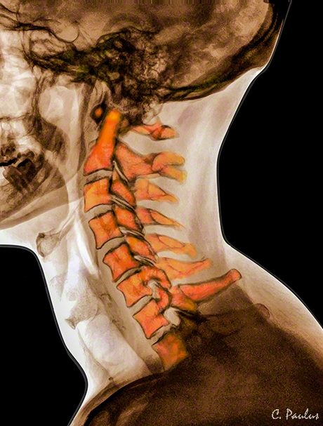 Cervical Spine Color X-Ray Anatomy