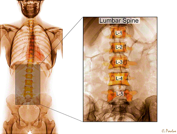 Color X-Ray of the Lumbar Spine showing Normal Anatomy