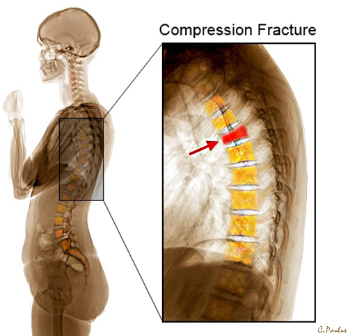 Lateral Thoracic Spine Color X-Ray Osteoporosis Compression Fracture