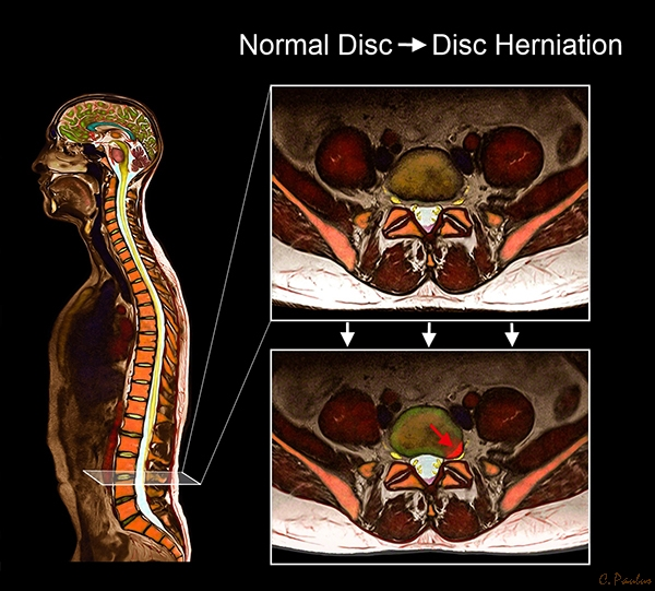 Axial Color MRI Lumbar Spine Normal Disc and Disc Herniation