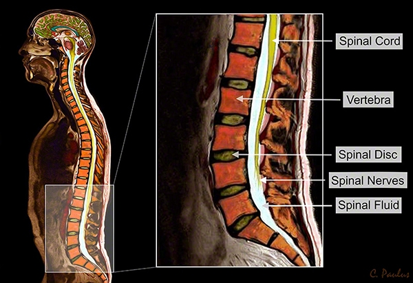 Sagittal Lumbar Spine Anatomy Color MRI Image
