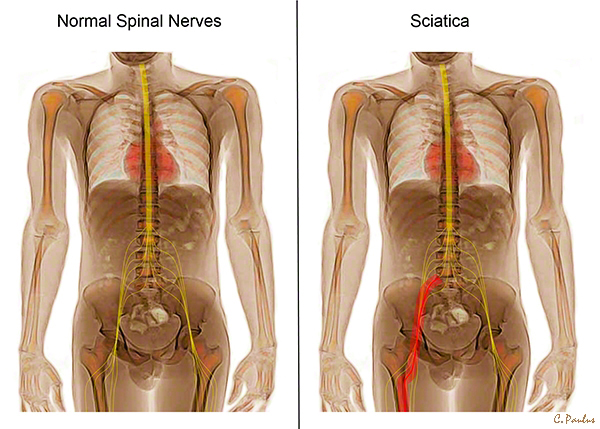 Color X-Ray Images of the Spinal Cord, Spinal Nerves, Sciatica