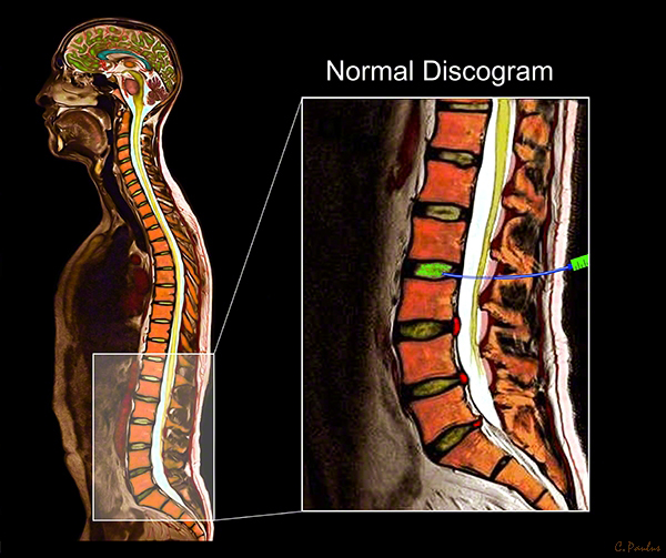 Color Lumbar Spine Sagittal MRI Image of a Normal Discogram