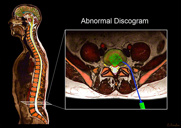 Axial Color MRI Image Abnormal Discogram