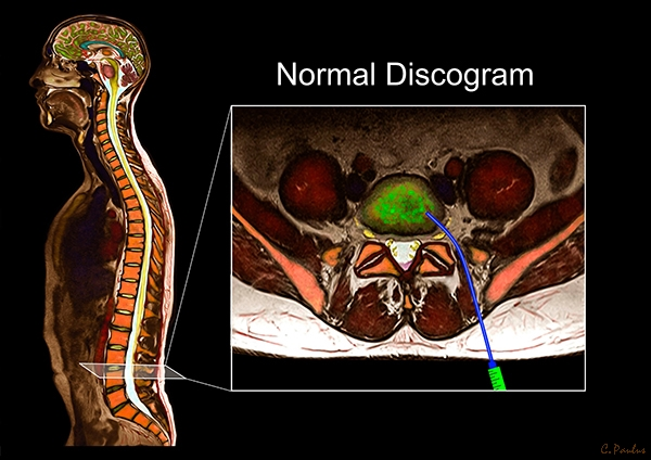 Axial Lumbar Spine Color MRI Normal Discogram