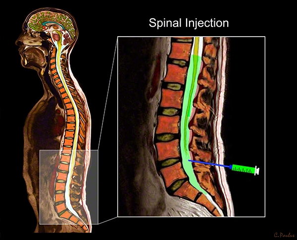 Sagittal Lumbar Spine Anatomy Color MRI Spinal Injection