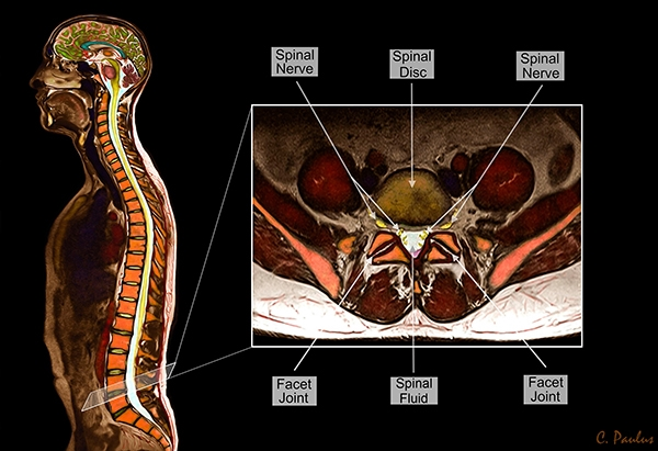Axial Lumbar Spine Color MRI showing Lumbar Spine Anatomy