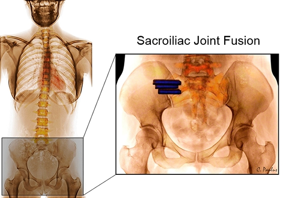 AP Pelvis Color X-Ray Sacroiliac Joint Fusion