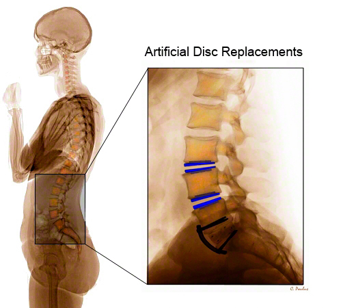 Lateral Lumbar Spine Color X-Ray Artificial Disc Replacements above Fusion