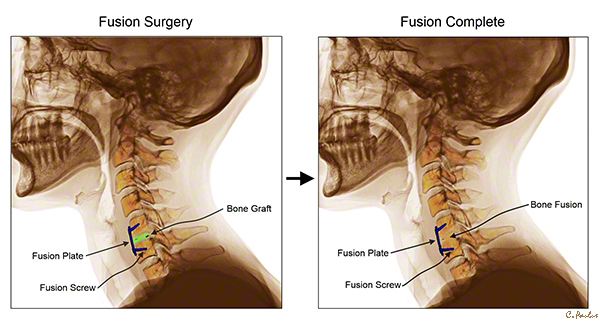 Lateral Cervical Spine Color X-Rays of an initial Cervical Fusion Surgery and a completed Fusion