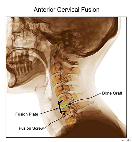 Lateral Color X-Ray Anterior Cervical Fusion