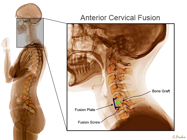 Lateral Cervical Spine Color X-Ray of an Anterior Cervical Fusion (ACDF)