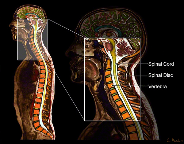 Color MRI of the Cervical Spine Anatomy including Spinal Disc, Spinal Cord.