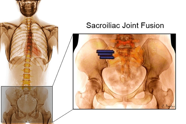 AP Pelvis Color X-Ray of a Sacroiliac Joint Fusion