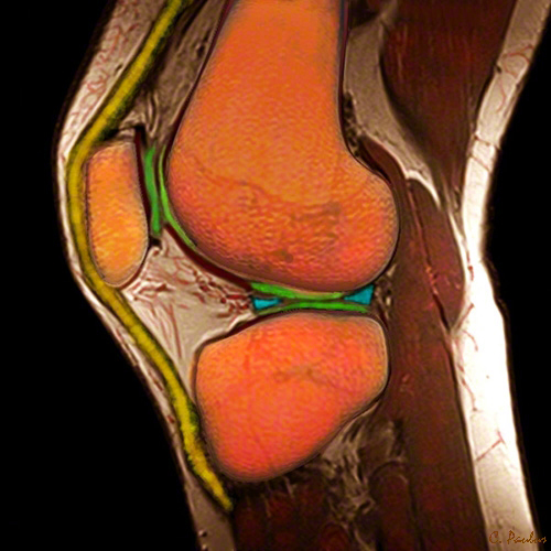Sagittal Color MRI Knee Joint meniscus, patellar ligament, quadriceps tendon