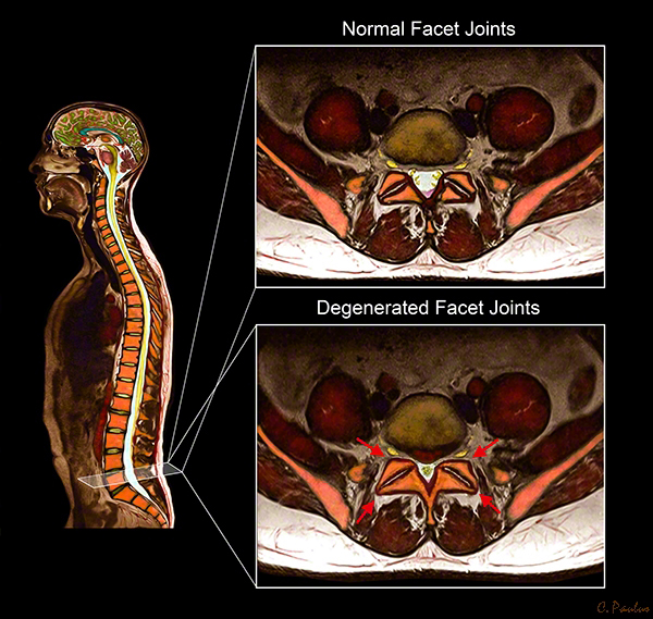 Axial Color MRI of Lumbar Spine Facet Joint Arthritis Degeneration