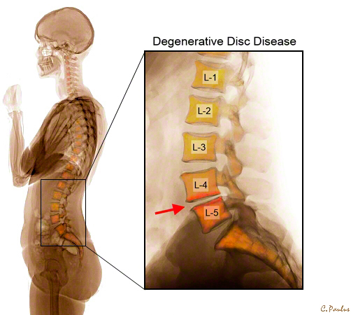 Lateral Lumbar Spine Color X-Ray showing Degenerative Disc Disease (DDD)