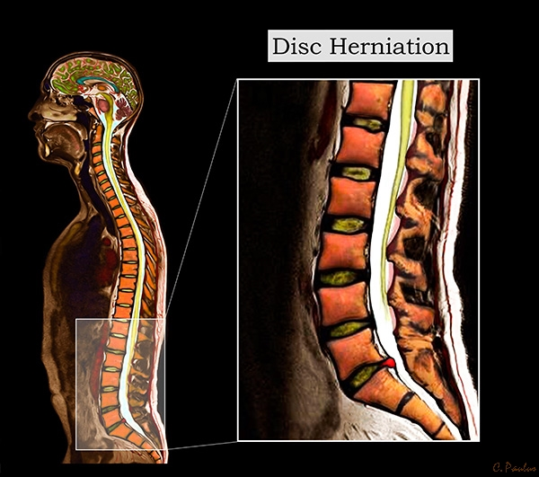 Sagittal Lumbar Spine Color MRI of a Disc Herniation