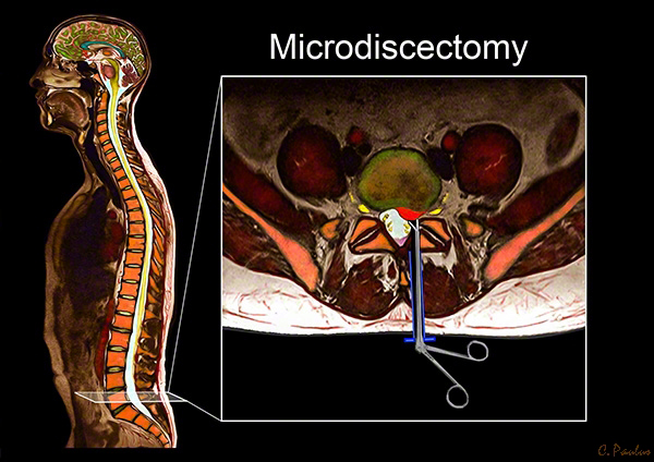 Axial Lumbar Spine Color MRI of a Microdiscectomy performed for a Disc Herniation