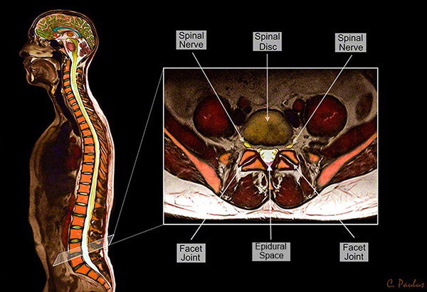 Axial Color MRI Lumbar Spine Anatomy Medical Images