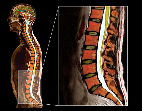Sagittal Color MRI showing the Anatomy of the Lumbar Spine