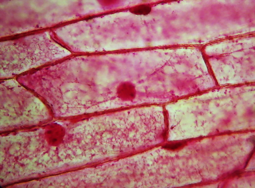 Onion Cells Fixed And Stained With Eosin