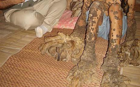 Epidermodysplasia verruciformis - RightDiagnosis.com