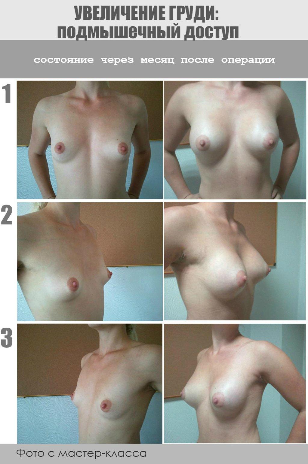 Увеличение груди киев 1 фотография