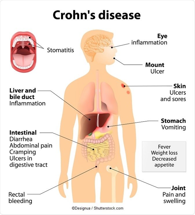 crohn s disease outline speech The barium outlines the large bowel syndrome and to another type of ibd called ulcerative colitis crohn's disease may also be called of speech essay fetus.