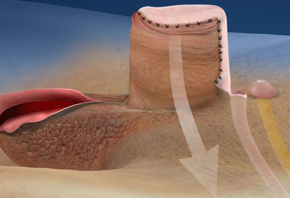 billede af en sort vagina