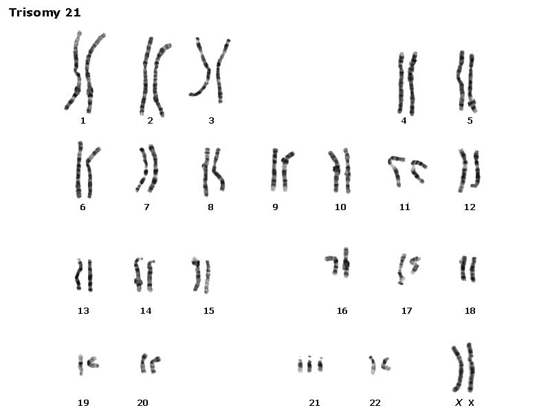 atypical sex chromosomes pic in Dorset