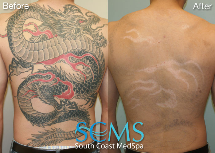 Laser Tattoo Removal - ThingLink