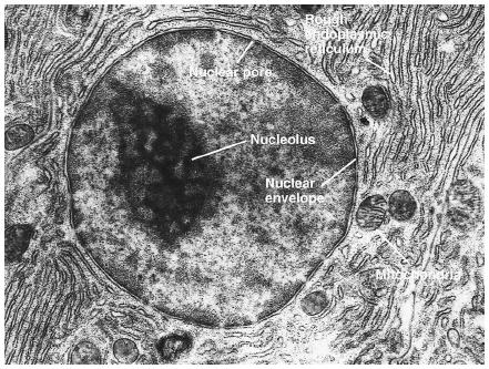 This is an example of a Eukaryotic cell under a microscope