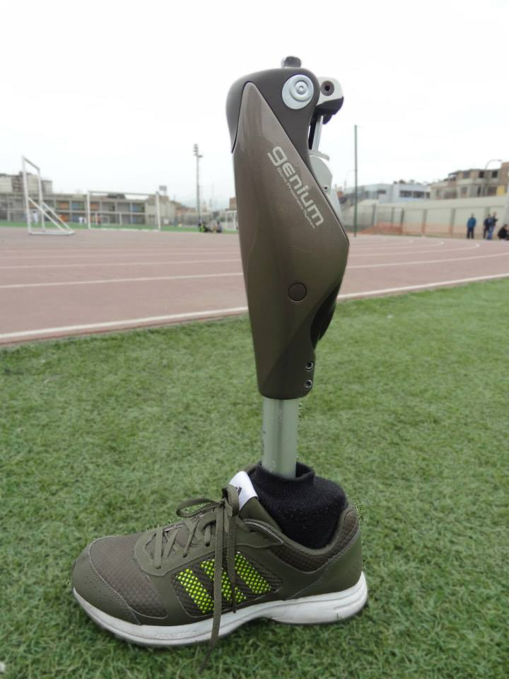 ¿Cómo funciona una pierna biónica Genium?