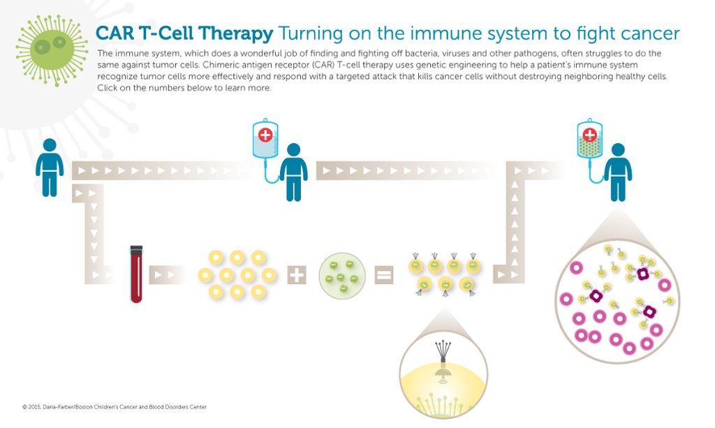 CAR T-cell therapy cancer immunotherapy