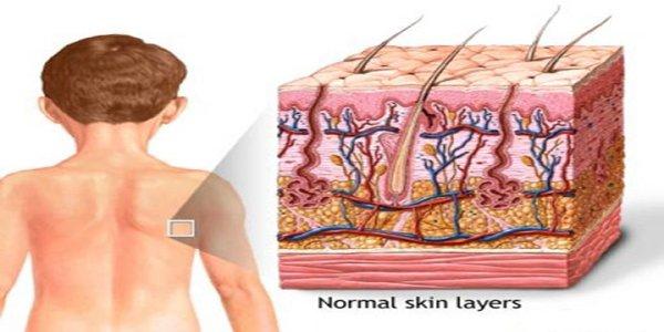 Dermis: internal part of the skin, Epidermis: Outer part ...