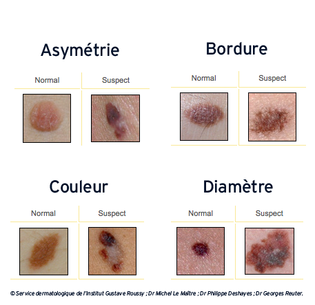 Grains De Beaute Et Cancer Quand Faut Il S Inquieter