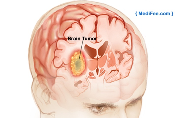 general signs and symptoms caused by brain tumors may inc thinglink. Black Bedroom Furniture Sets. Home Design Ideas