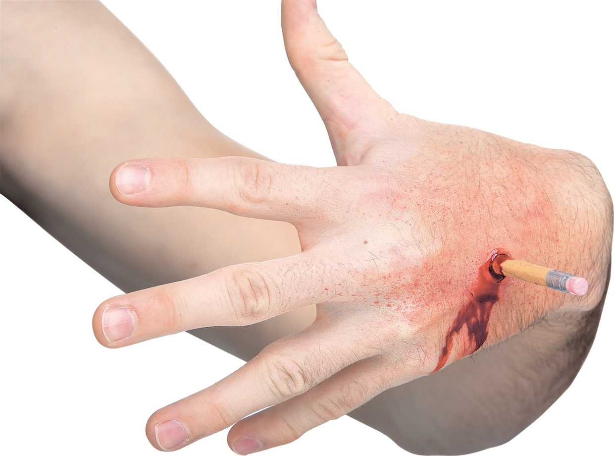 open wound hand puncture