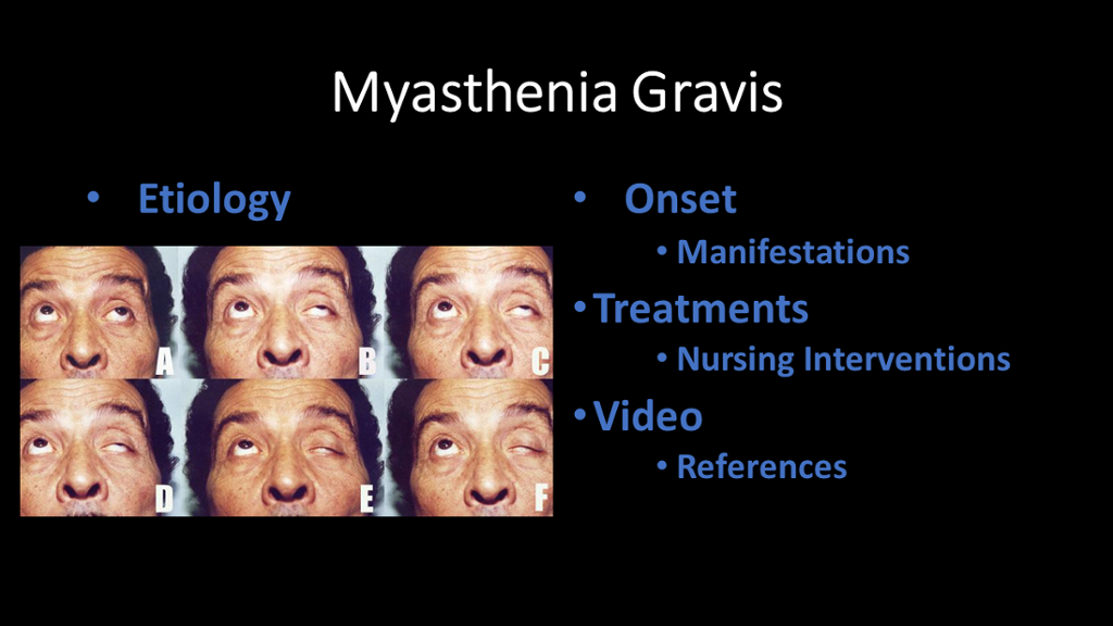 Myasthenia Gravis Get the Facts on Treatment and Tests