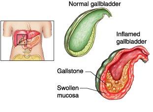 Acute Cholecystitis