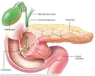 acute and chronic cholecystitis pdf