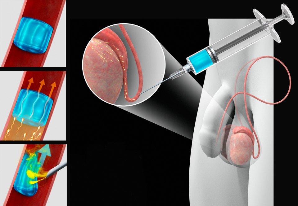 Sterilisation af mænd bivirkninger